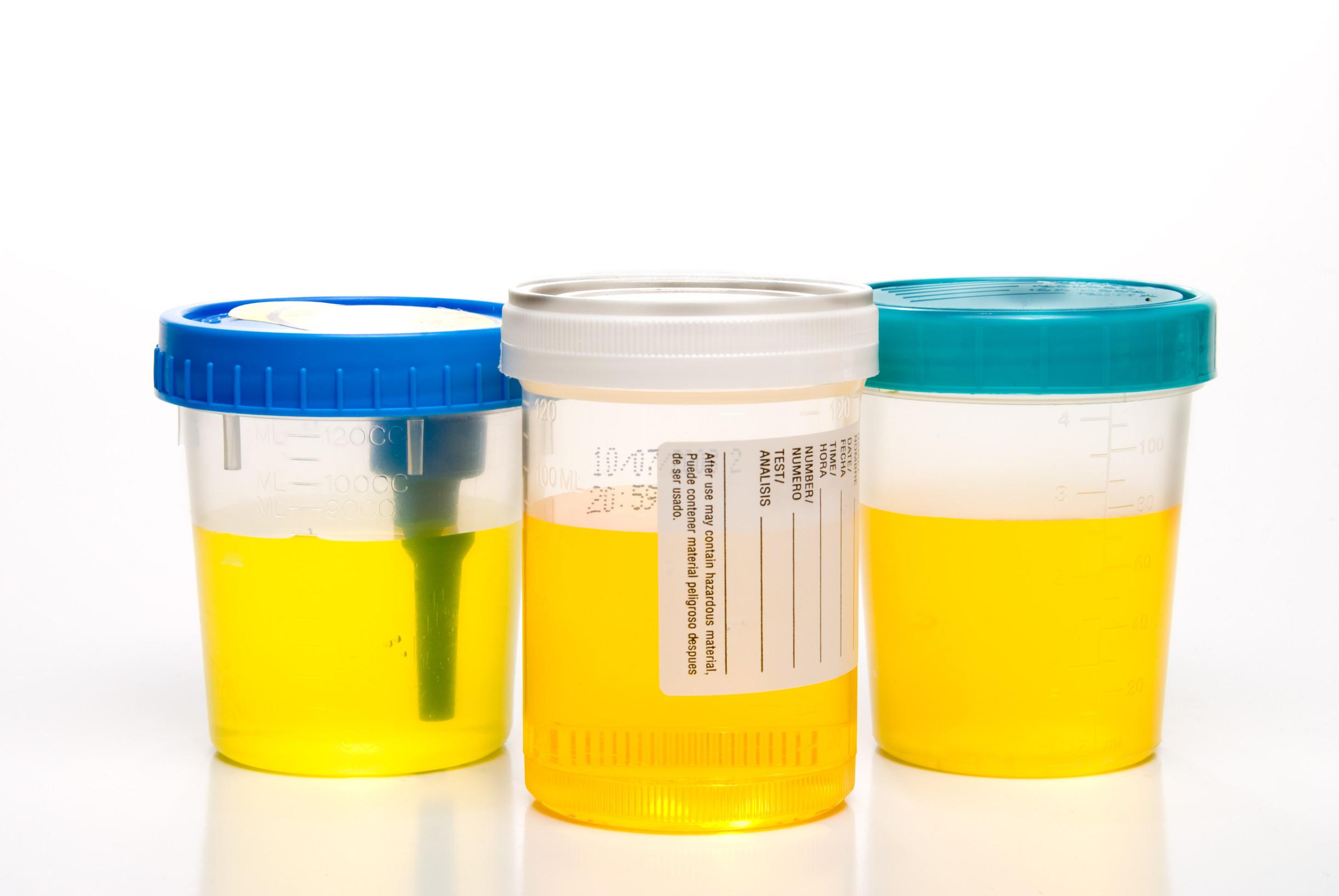 mikä antibiootti virtsatietulehdukseen
