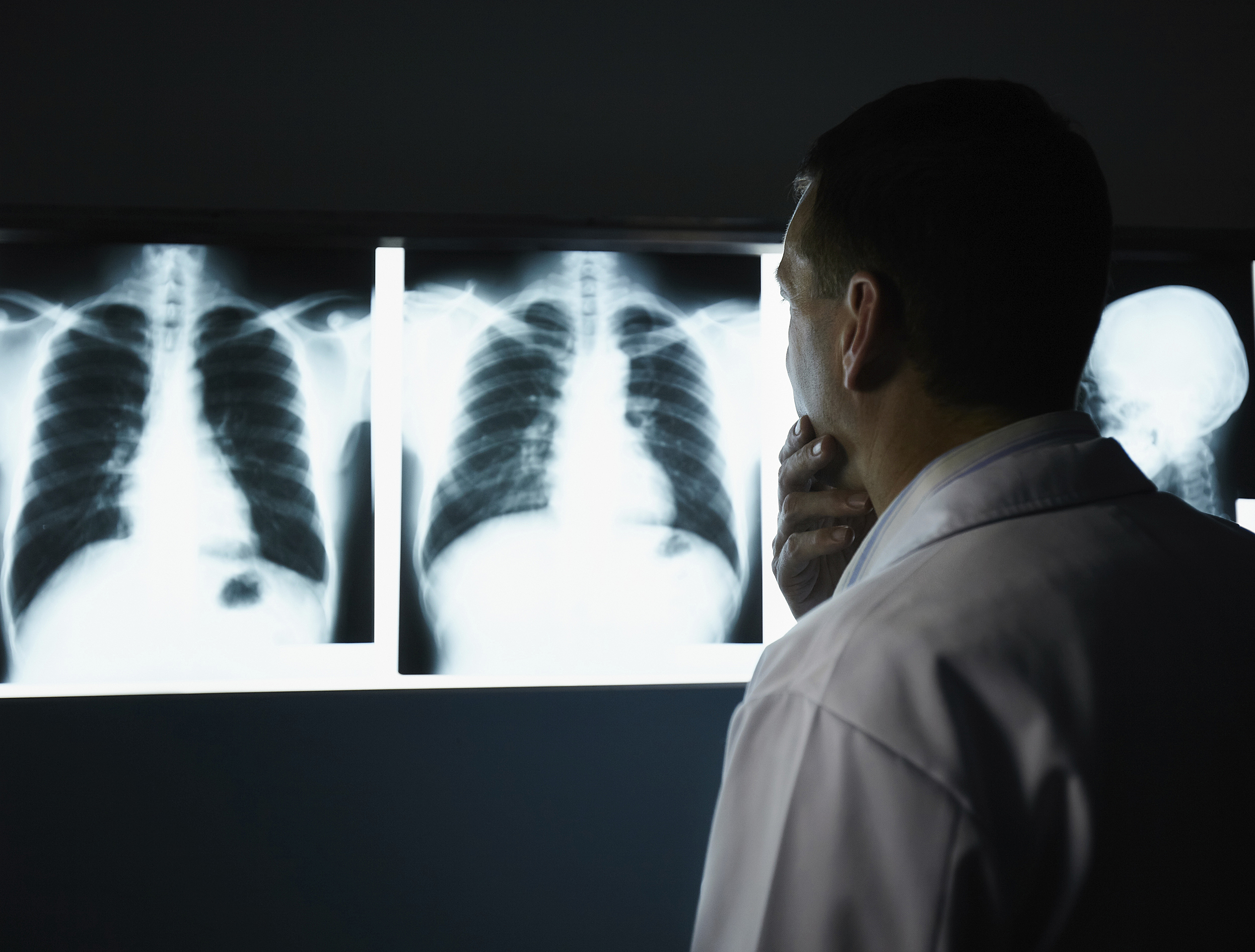 kefexin keuhkokuume