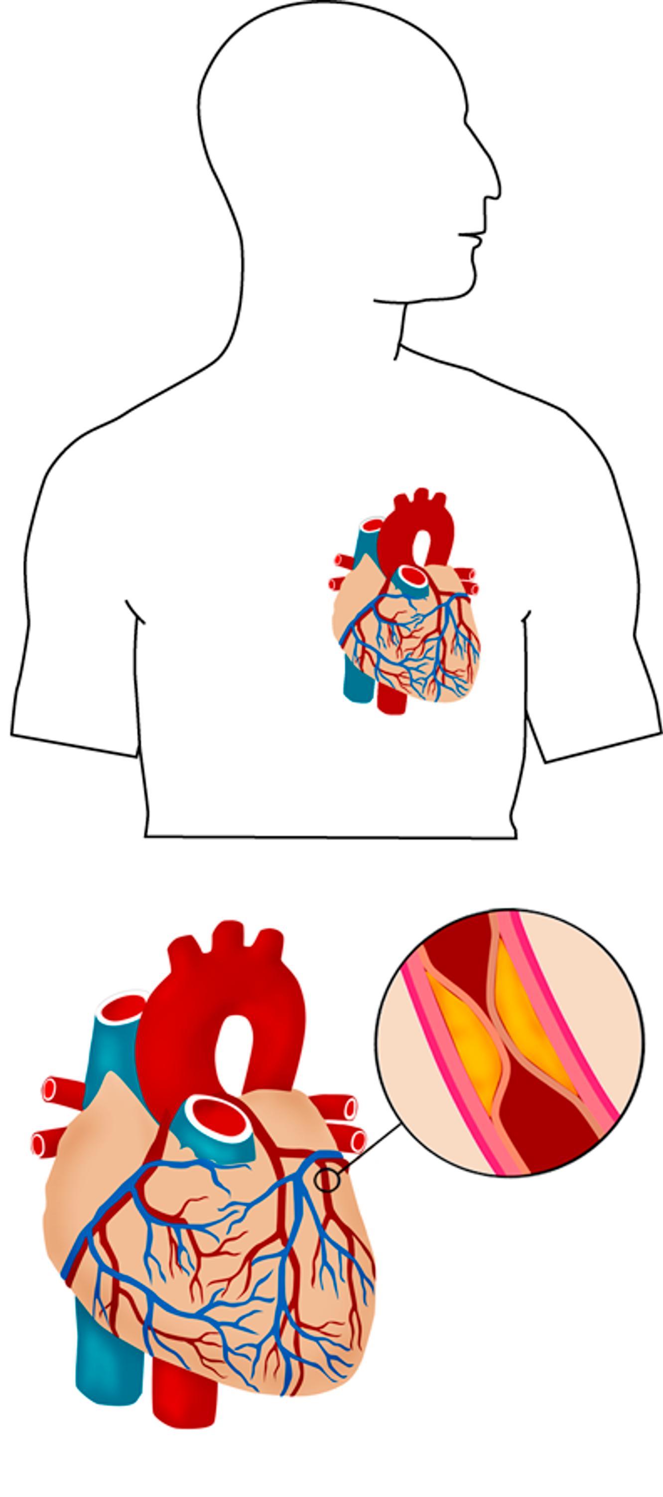 Sydän Ja Verisuonitaudit Hoito